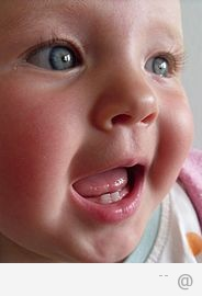 23109563498 Baby Bottle Tooth Decay Baby Bottle Tooth Decay