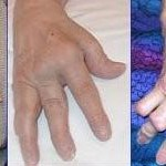 Arthritis How It Effects and Debilitates