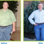 5 Facts About Weight Loss Surgery You Should Know