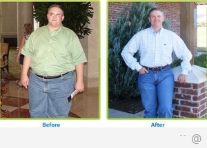 81498 Weight Loss Surgery 300x215 5 Facts About Weight Loss Surgery You Should Know