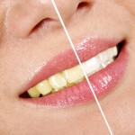 Tips To Keeping Your Teeth White