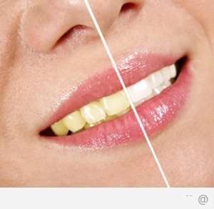8453228 how to keep your teeth white 300x293 Tips To Keeping Your Teeth White