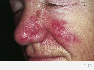 8808 treatment for rosacea What You Need To Know About Rosacea