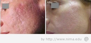 Img skin rejuvenation 300x143 Tips To Rejuvenate The Skin