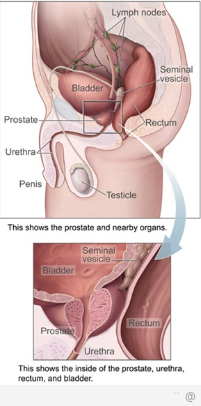 838 Prostate Cancer img 5 Prostate Cancer Risk Factors You Should Know About