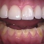 How To Take Care Of Dental Veneers