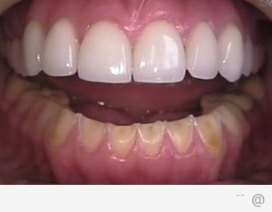 img dental veneers 300x234 How To Take Care Of Dental Veneers