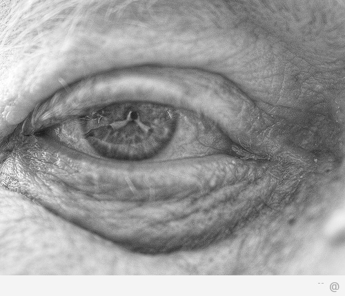 Aging Eyes Aging Eyes: What To Look For