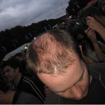 Hair Loss Doesn't Fit In To Your Houston Life