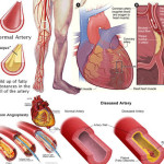6 Peripheral Artery Disease Danger Signs