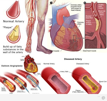 artery 6 Peripheral Artery Disease Danger Signs