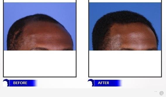 hair transplant Are Hair Transplants Different For Black Men?