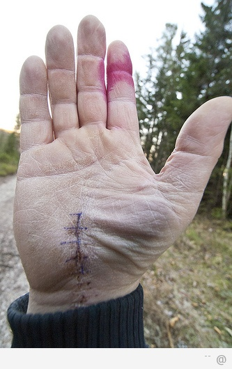 carpatunel Carpal Tunnel Syndrome: Stop the Pain Cycle