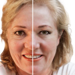 Liquid facelifts – what are they and how they work?