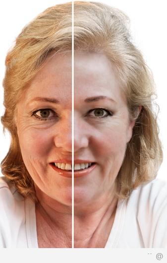 Liquid facelifts Liquid facelifts   what are they and how they work?