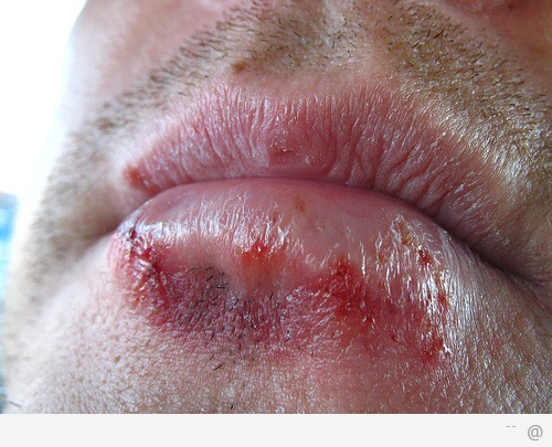 Infection Shingles herpes zoster