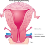 Reasons And Advantages Of Getting A Hysterectomy