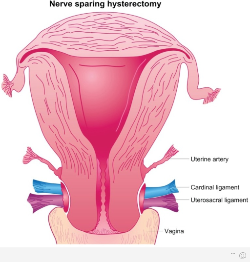 Hysterectomy Reasons And Advantages Of Getting A Hysterectomy