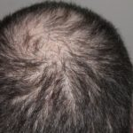 What Treatment Is There For Hair Loss In Men?