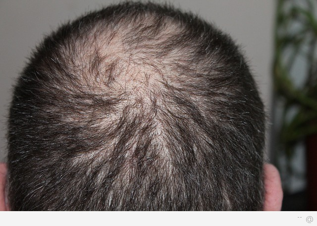hair loss in man What Treatment Is There For Hair Loss In Men?