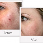 What You Should Know About Crystal Microdermabrasion
