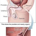 5 Prostate Cancer Risk Factors You Should Know About