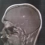 Brain Tumors: Current Management Strategies