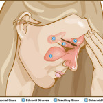Fear Of Antibiotic Resistance Fuel Changes In AAP Approved Sinusitis Treatment
