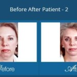What Is The Recovery Time For A Facelift?