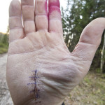 Carpal Tunnel Syndrome: Stop the Pain Cycle