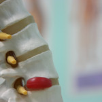 Steps To Recovery: What To Do After A Back Injury
