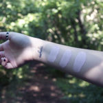 Alternative Scar Treatments